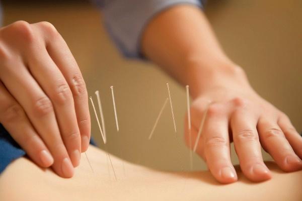 akupunktur tedavi