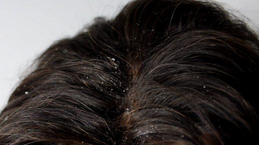 kepekli saçlar